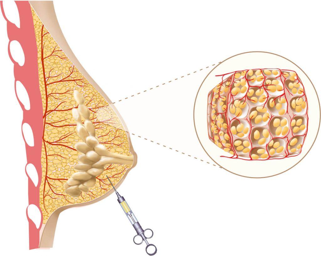 lipofilling mammaire geneve